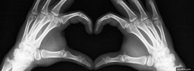 free X-Ray Love facebook cover